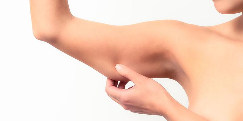 flacidez-corporal-kalos-medicina-estetica